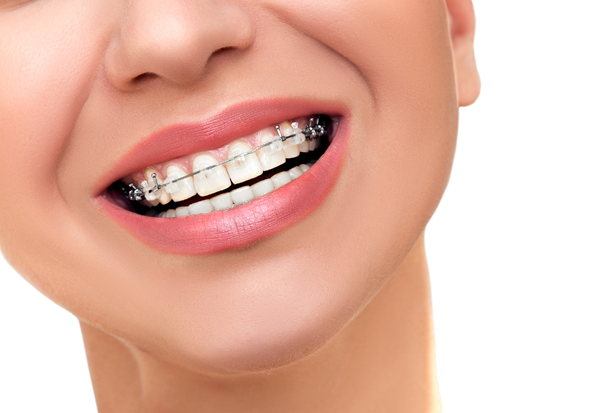 Are Clear Braces Better Than Traditional Braces?